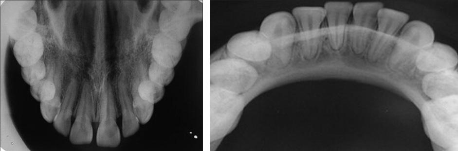 انواع عکس های دندانپزشکی - رادیوگرافی اکلوزال Occlusal