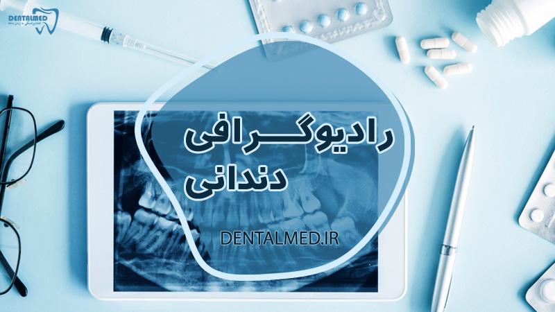 انواع عکس های دندانپزشکی - رادیوگرافی دندانی - دنتال مد