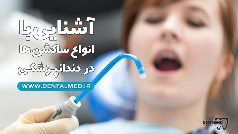 آموزش انواع ساکشن ها در دندانپزشکی برای 'دستیار دندانپزشک' همراه با ویدئوی آموزشی