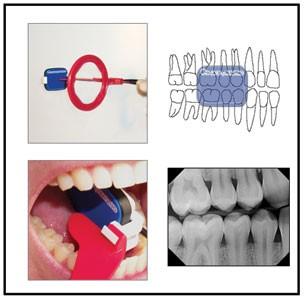 Oral and Maxillofacial Radiology (تخصص رادیولوژی دندانپزشکی)