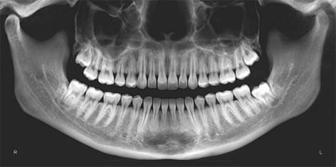 یک نمونه از رادیوگرافی های خارج دهانی (رادیوگرافی پانورامیک)