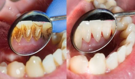 جرم گیری و برساژ دندان ها – انواع روش های جرم گیری، مراحل انجام، فواید و عوارض آن همراه با فیلم