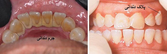 جرم دندان چیست و چگونه ایجاد می شود؟ - پلاک دندانی و جرم دندانی