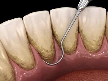 روش های جرم گیری دستی دندان