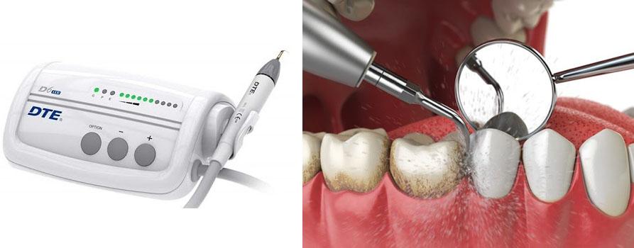 روش اولتراسونیک جرم گیری دندان