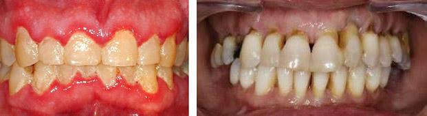 جرم گیری دندان ها چه فوایدی دارد و هرچند وقت یک بار باید انجام شود؟