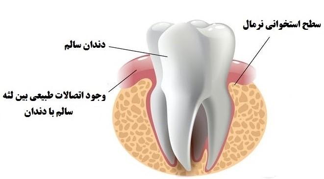 آناتومی جرم گیری دندان - روش های جرم گیری دندان
