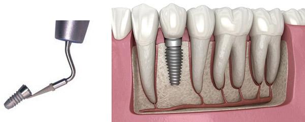 آیا می توان ایمپلنت های دندانی را نیز جرم گیری کرد؟ جرم گیری در کودکان نیز انجام می شود؟