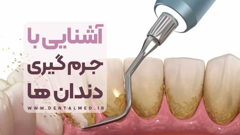 جرم گیری دندان (برساژ دندان ها) چیست همراه با فیلم آموزشی مراحل انجام - فواید و عوارض
