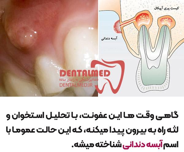 عکس آبسه دندانی درمان آبسه دندانی درمان عفونت دندانی علت آبسه دندانی Signs That You Have A Dental Abscess