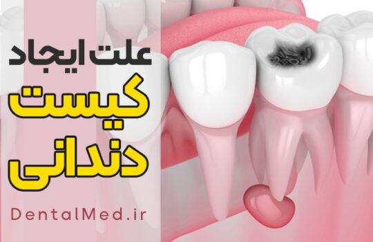 کیست دندان چیست ؟ کیست پری آپیکال درمان خانگی جراحی کیست و آبسه دندانی