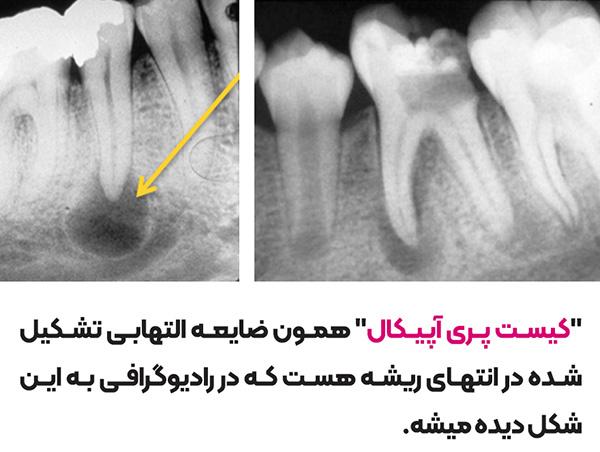 کیست دندان در رادیوگرافی ، تصویر عکس رادیوگرافی کیست پری اپیکال چگونه است